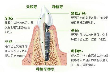 牙齿表面结构图